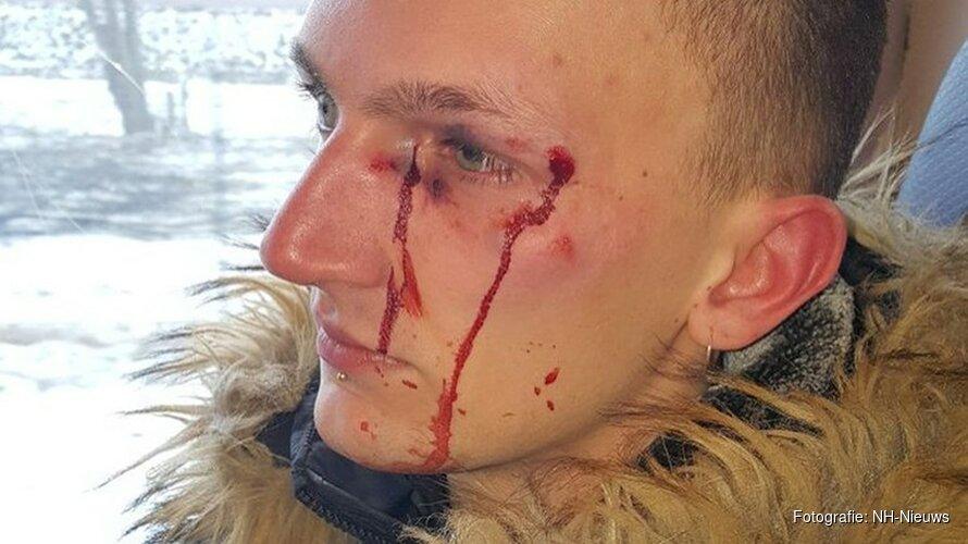 """Matthew uit het niets mishandeld door groep jongeren op station Hoorn: """"Ik heb mezelf moeten redden"""""""